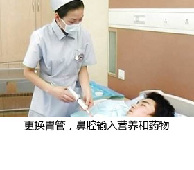 留置胃管(鼻饲)